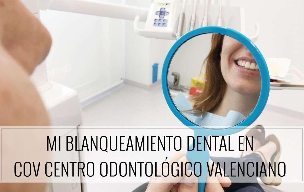 Mi blanqueamiento dental en COV Centro Odontológico Valenciano ...