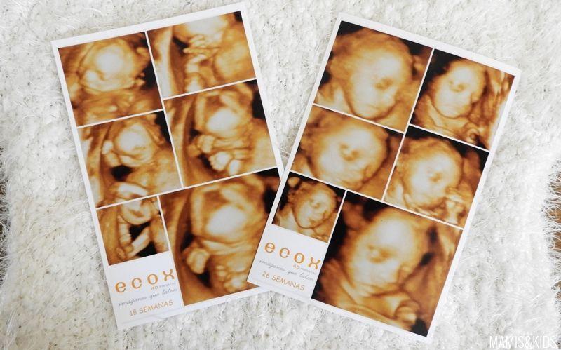 Las fotos de la ecografía ECOX 4D